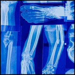 bone-scans