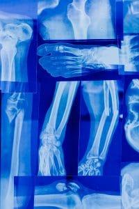 Broken Bones and Fractures Lawyer