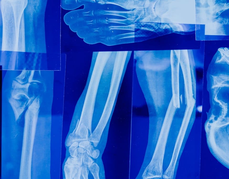 What Are The Four D's Of Medical Negligence?
